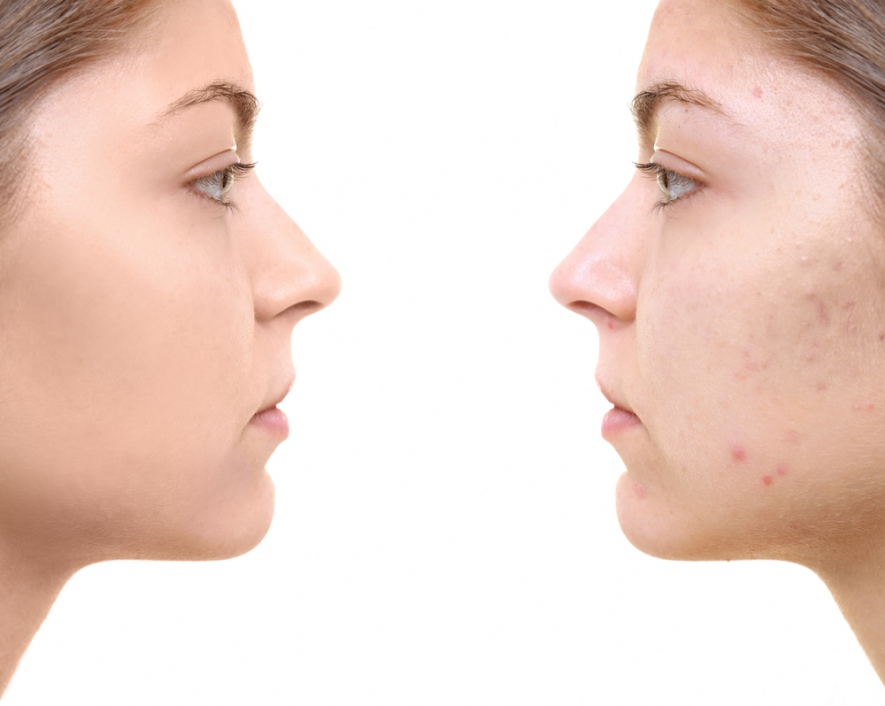 vitamin b5 mot acne