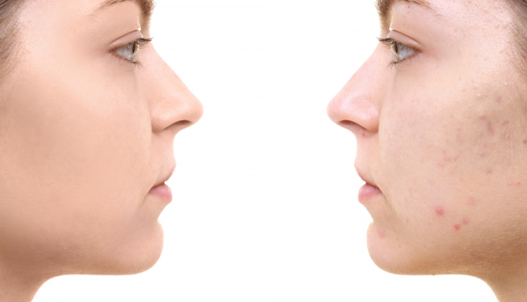 How Vitamin B5 Could Help People With Acne