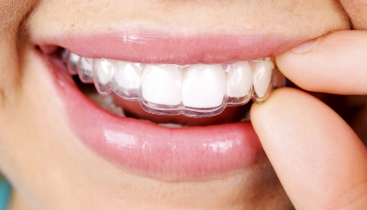 Pros and Cons Of Invisalign For Adults